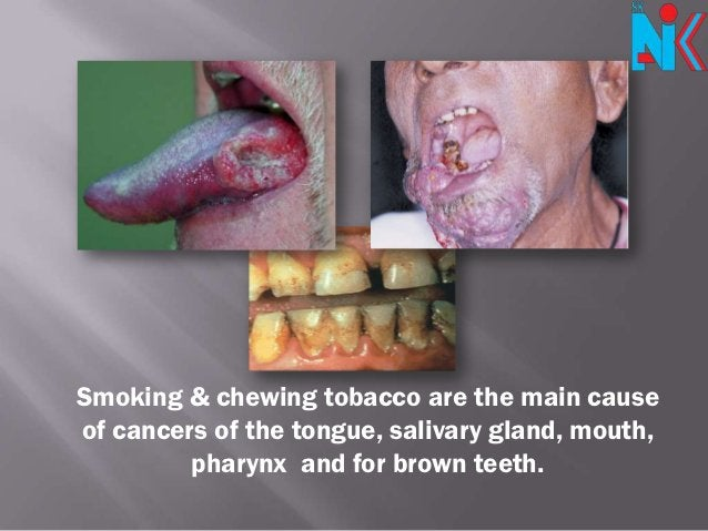 Smoking & chewing tobacco are the main causeof cancers of the tongue, salivary gland, mouth,         pharynx and for brown...