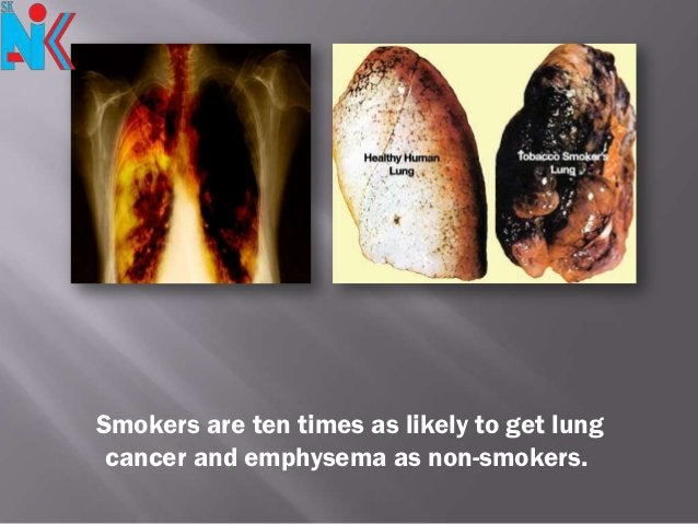 Smokers are ten times as likely to get lung cancer and emphysema as non-smokers.