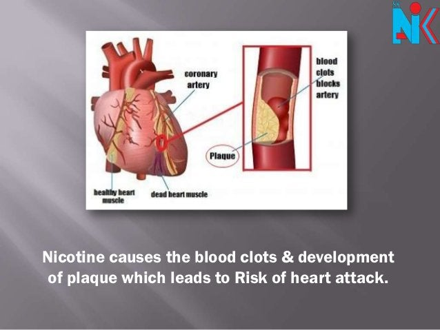 Nicotine causes the blood clots & development of plaque which leads to Risk of heart attack.