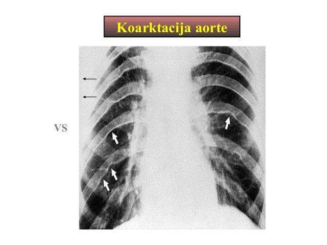 Anatomija srca