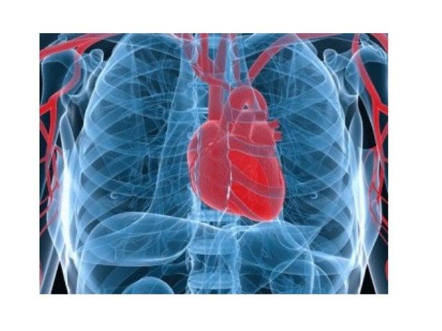 АБНОРМАЛНИ ПОЛОЖАЈ СРЦА Dekstrokardija