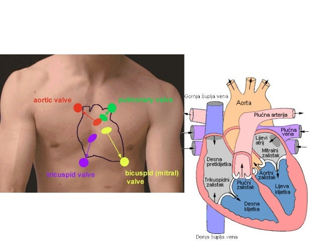Koarktacija aorte VS