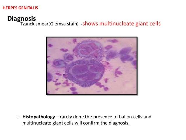 Herpes genitalis partnersuche