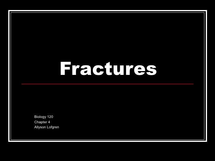 Fractures Biology 120  Chapter 4 Allyson Lofgren