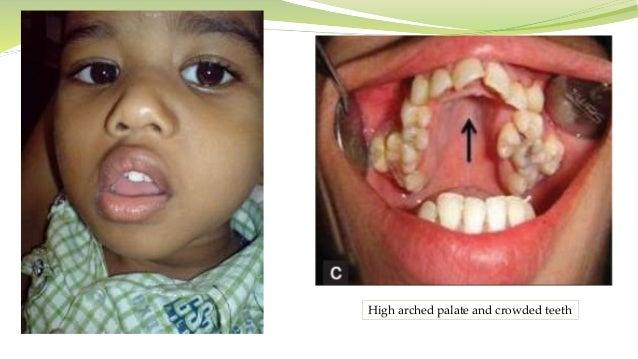 Presentation Adenoidectomy