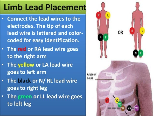 ... lead wire goes to left leg; 15.
