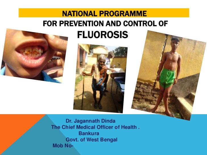 NATIONAL PROGRAMMEFOR PREVENTION AND CONTROL OF           FLUOROSIS      Dr. Jagannath Dinda The Chief Medical Officer of ...