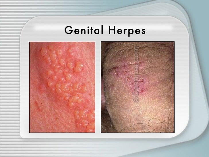 Home remedies for hsv 1 genital, reiki treatment process