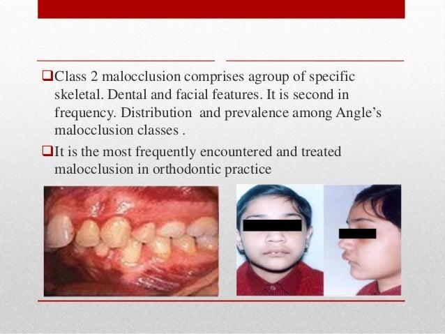 Class II division 1 malocclusion