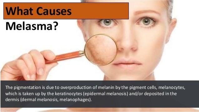 Best Way To Cure Melasma