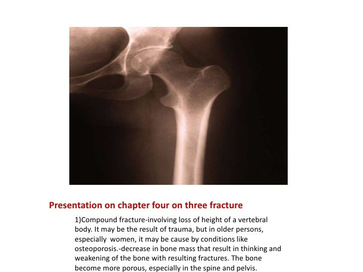 Presentation on chapter four on three fracture<br />1)Compound fracture-involving loss of height of a vertebral body. It m...