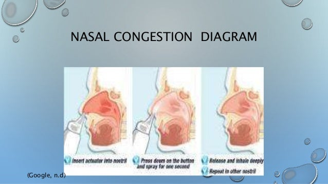 Diagram Of Nasal Congestion Wiring Diagram Database