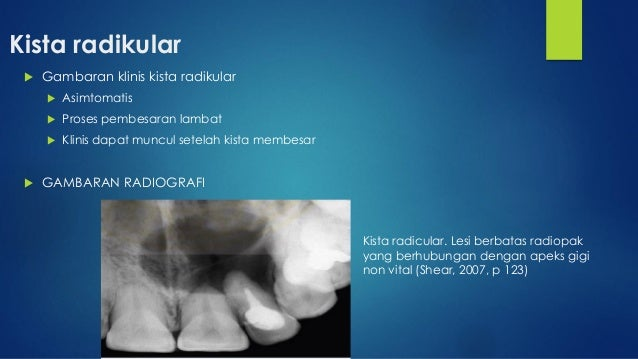 Presentasi Kista Odontogenik Dan Tumor Odontogenik Willi Fragcana P
