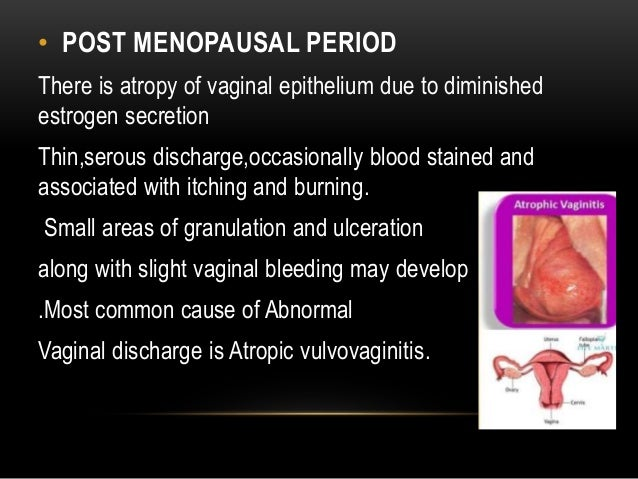 Vaginal discharge stains