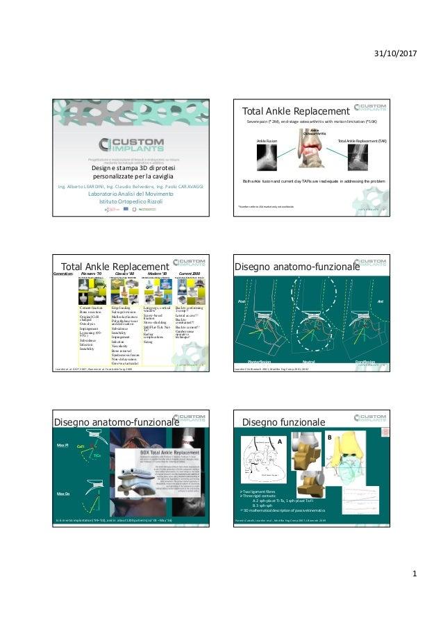 31/10/2017 1 Design e stampa 3D di protesi personalizzate per la caviglia Ing. Alberto LEARDINI, Ing. Claudio Belvedere, I...