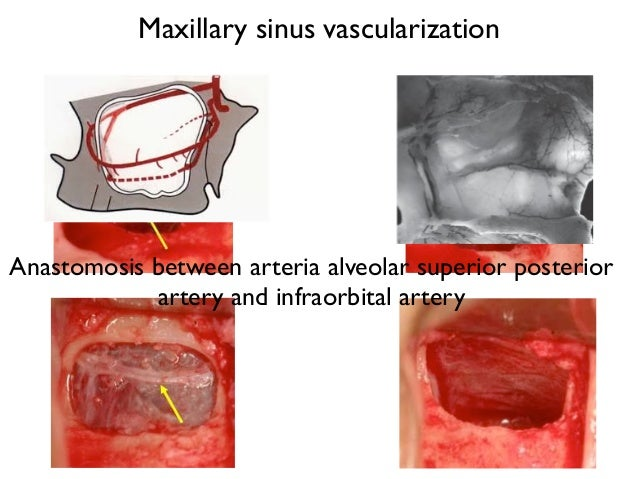 Sinus Floor Elevation Systematic Review : Sinus lift and immediate implant placement