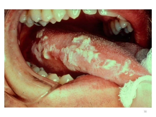Why is My Tongue White When I Wake Up | IYTmed.com