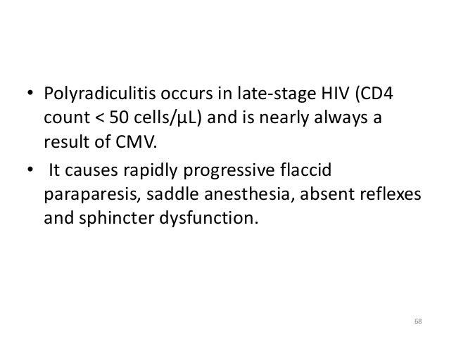 polyradiculitis