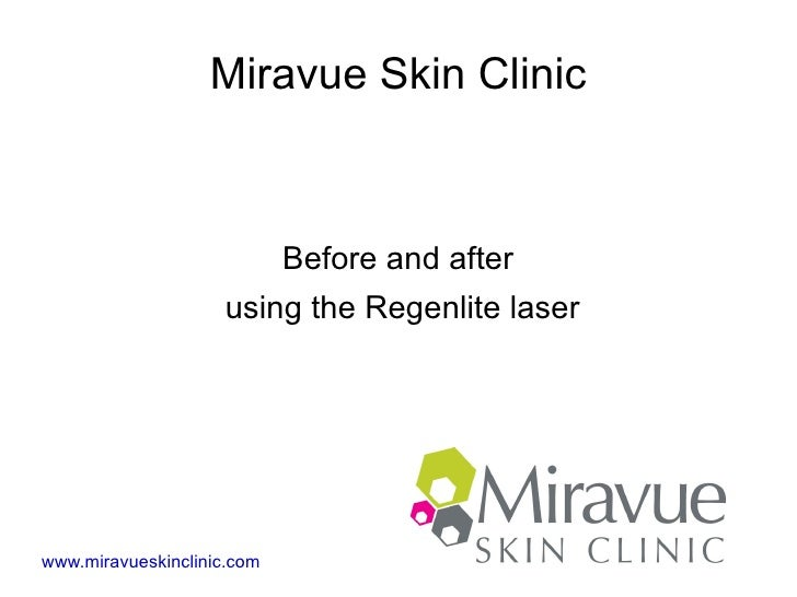 Miravue Skin Clinic                            Before and after                    using the Regenlite laserwww.miravueski...