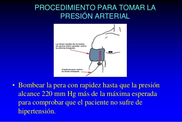 • Cuando el latido se hace audible, anotar la presión, que es la presión máxima o sistólica. Cuando el latido deja de oírs...