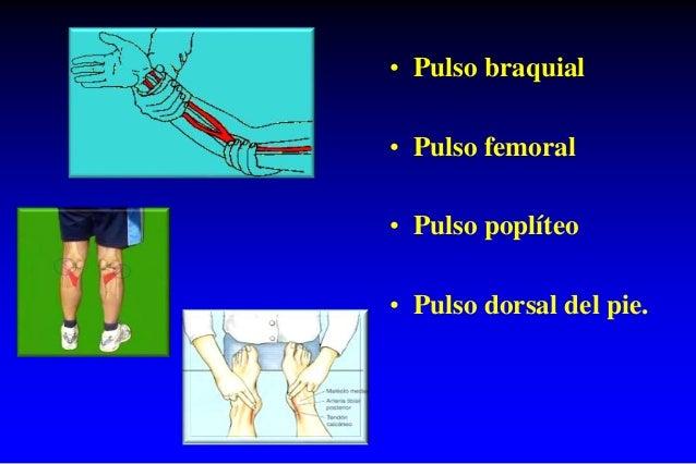 • Pulso braquial • Pulso femoral • Pulso poplíteo • Pulso dorsal del pie.
