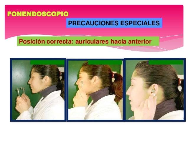 FONENDOSCOPIO PRECAUCIONES ESPECIALES Posición correcta: auriculares hacia anterior
