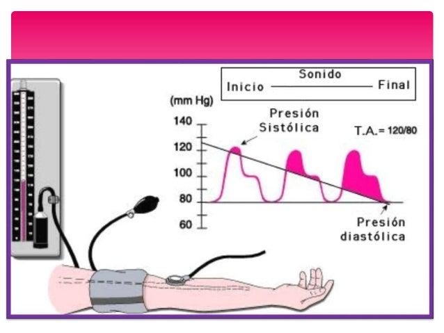 Silencio Fase 1 Fase 2 Fase 3 Fase 4 Fase 5 Fases ausculatorias del registro manométrico de la PA PRESION SISTOLICA PRESIO...