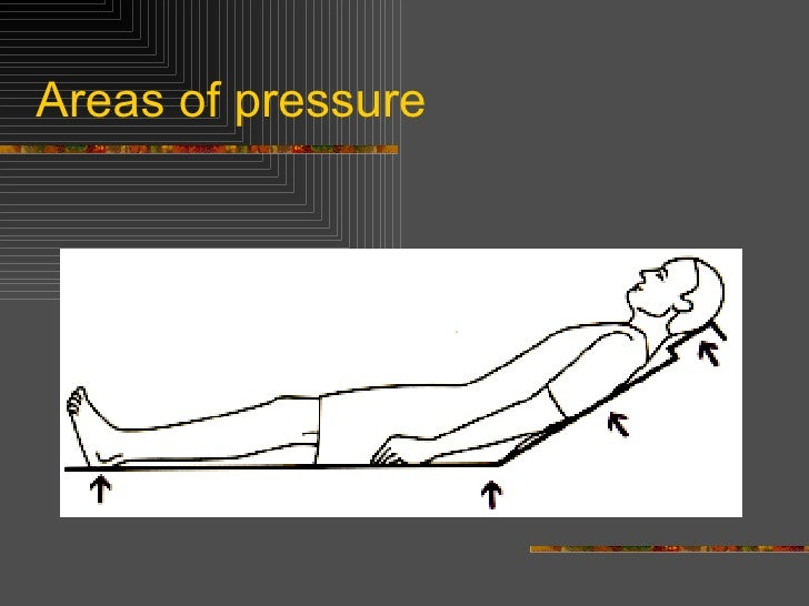 10  areas of pressure