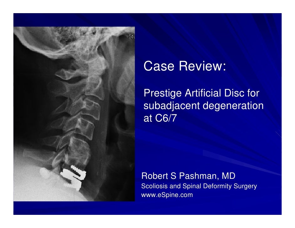 Case Review:Prestige Artificial Disc forsubadjacent degenerationat C6/7Robert S Pashman, MDScoliosis and Spinal Deformity ...