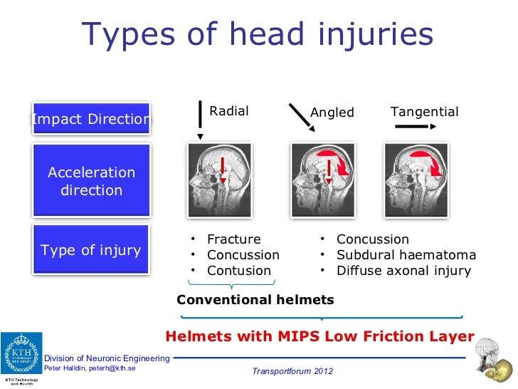 Types of head injuries Radial Tangential Angled <ul><li>Fracture </li></ul><ul><li>Concussion </li></ul><ul><li>Contusion ...