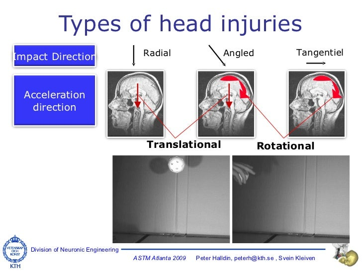 Types of head injuries Radial Tangentiel Translational Angled Rotational Impact Direction Acceleration direction