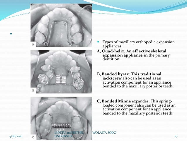 Presurgical diagnosis and treatment planing of orthognathic
