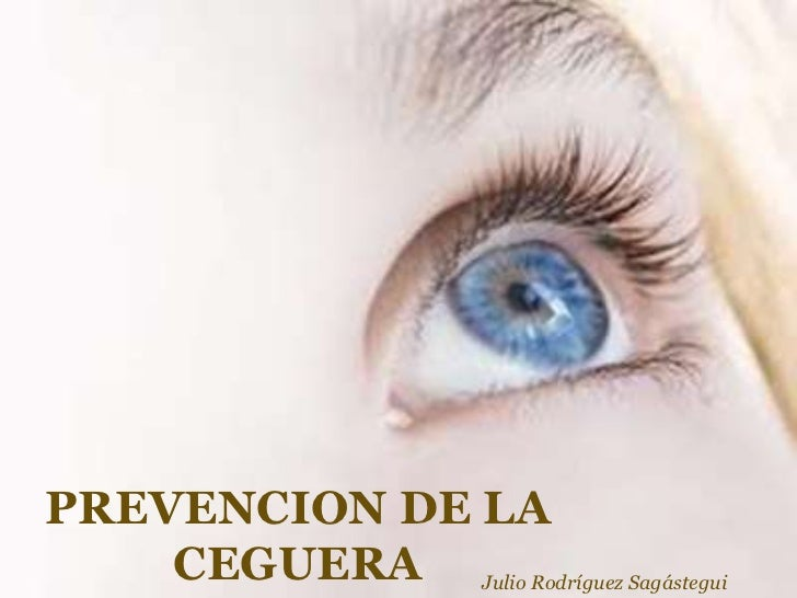 PREVENCION DE LA    CEGUERA Julio Rodríguez Sagástegui