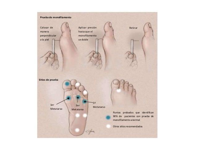 Prevenci 243 N De La Ulceraci 243 N De Los Pies 12072013