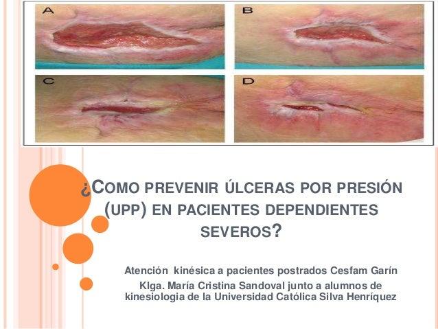 ¿COMO PREVENIR ÚLCERAS POR PRESIÓN (UPP) EN PACIENTES DEPENDIENTES SEVEROS? Atención kinésica a pacientes postrados Cesfam...