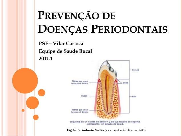 PREVENÇÃO DEDOENÇAS PERIODONTAISPSF – Vilar CariocaEquipe de Saúde Bucal2011.1          Fig.1- Periodonto Sadio (www. orto...