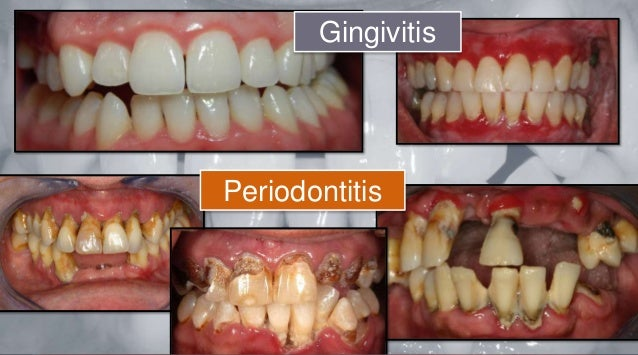 Gingivitis and Periodontal Disease Gum Disease  WebMD