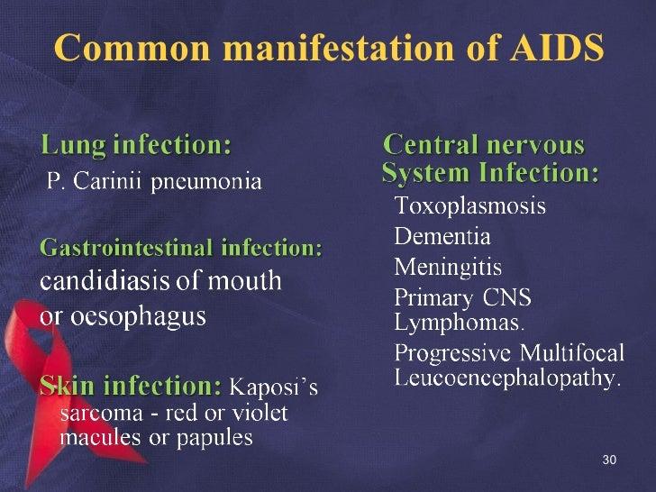 Common manifestation of AIDS