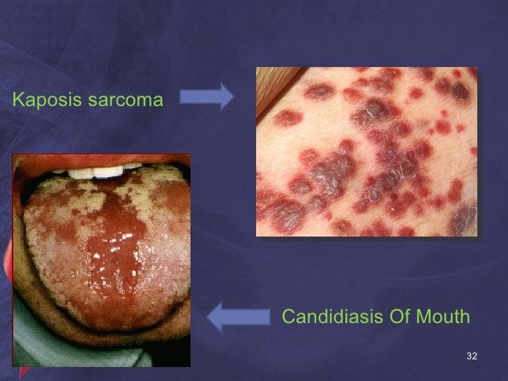 Kaposis sarcoma Candidiasis Of Mouth