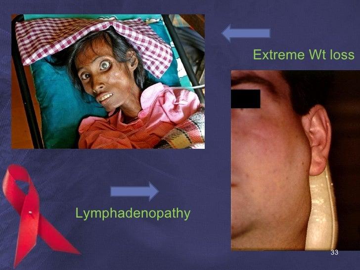Extreme Wt loss Lymphadenopathy