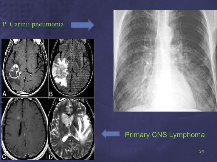 P. Carinii pneumonia <ul><li>Primary CNS Lymphoma </li></ul>