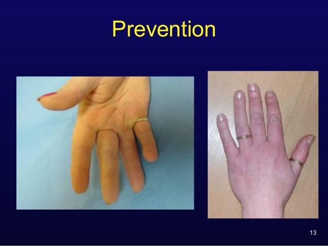 prevention of ring finger avulsion degloving