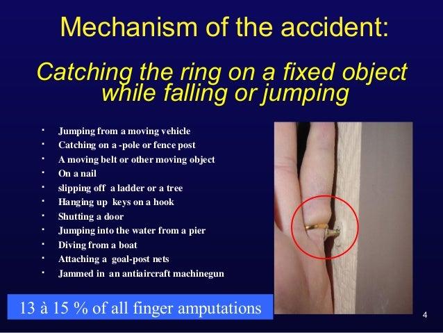 """Prevention of ring finger avulsion (""""degloving"""""""