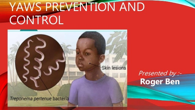 Prevention Of Yaws Roge Ppt