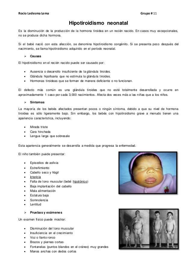 Rocio LedesmaLema Grupo # 11 Hipotiroidismo neonatal Es la disminución de la producción de la hormona tiroidea en un recié...