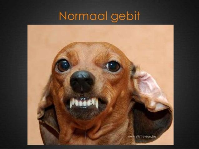 Normaal gebit www.stijnteysen.be