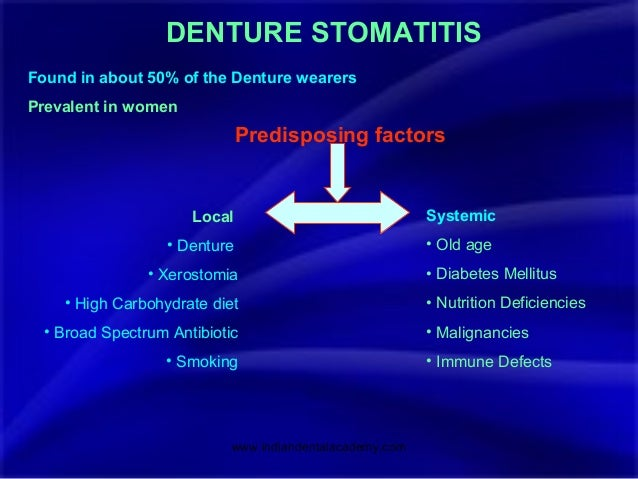 preventing denture stomatitis Denture stomatitis is a common oral mucosal lesion in the deterrence/prevention denture sanitization is an important element in the treatment of denture.