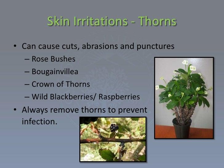 Prev skinirritationfromplants