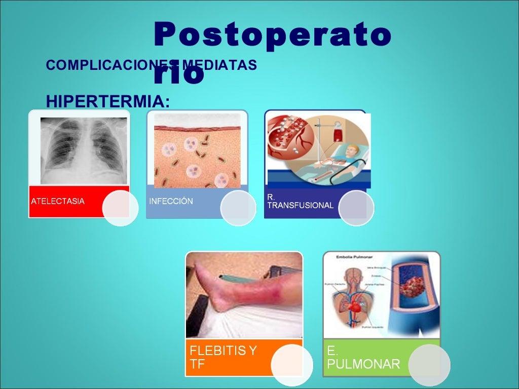 Preoperatorio y postoperatorio 2