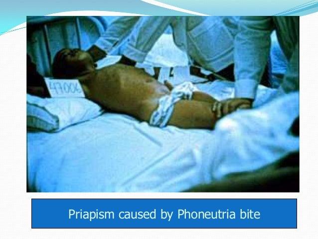 Priapism caused by Phoneutria bite